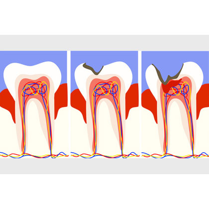 zahnerhaltung-zahnarzt